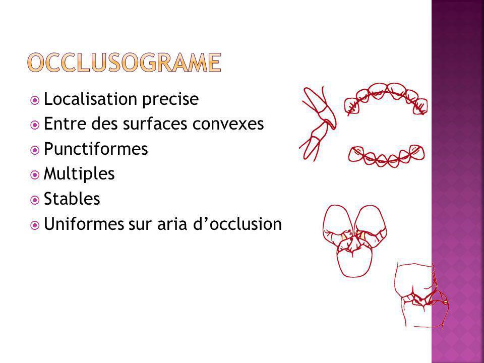 Localisation precise Entre des surfaces convexes Punctiformes Multiples Stables Uniformes sur aria docclusion