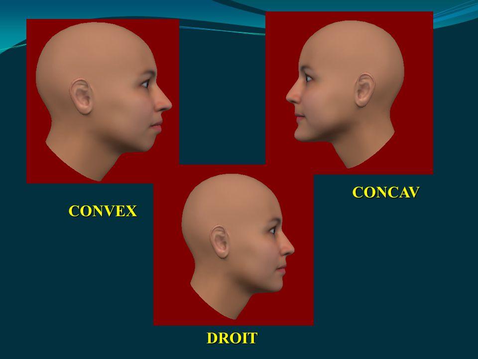 CONVEX DROIT CONCAV