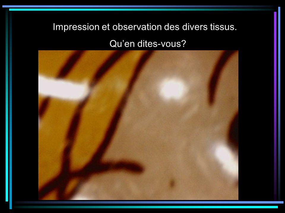 Impression et observation des divers tissus. Quen dites-vous?