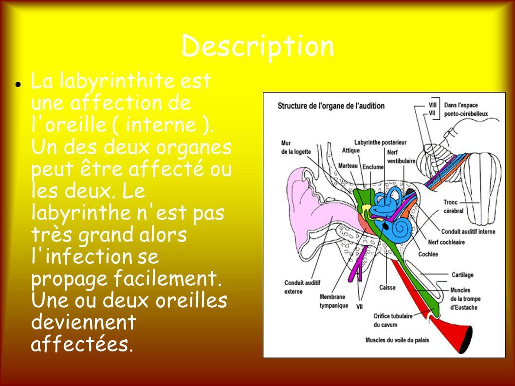 Description La labyrinthite est une affection de l oreille ( interne ).