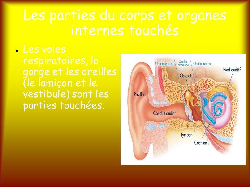 Les parties du corps et organes internes touchés Les voies respiratoires, la gorge et les oreilles (le lamiçon et le vestibule) sont les parties touchées.