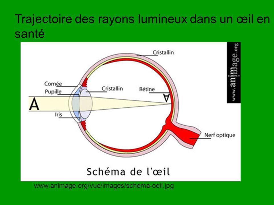 www.animage.org/vue/images/schema-oeil.jpg Trajectoire des rayons lumineux dans un œil en santé