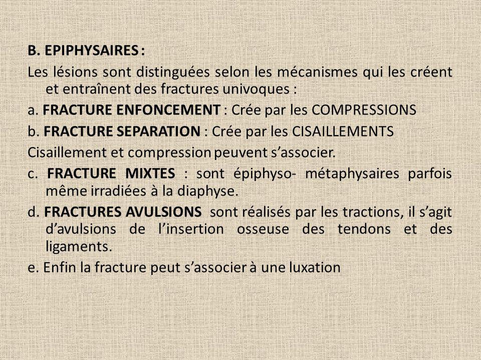B. EPIPHYSAIRES : Les lésions sont distinguées selon les mécanismes qui les créent et entraînent des fractures univoques : a. FRACTURE ENFONCEMENT : C