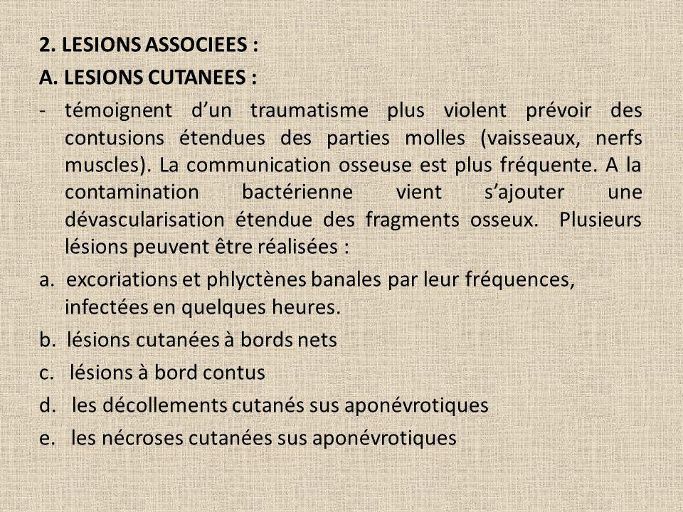 2. LESIONS ASSOCIEES : A. LESIONS CUTANEES : - témoignent dun traumatisme plus violent prévoir des contusions étendues des parties molles (vaisseaux,