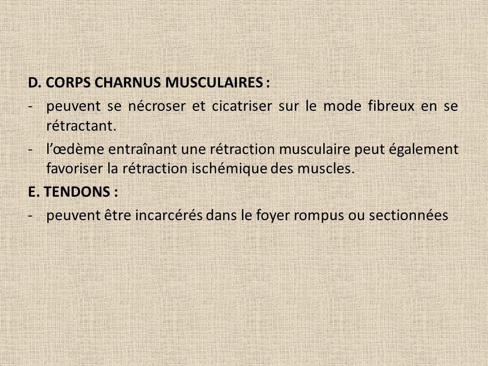D. CORPS CHARNUS MUSCULAIRES : -peuvent se nécroser et cicatriser sur le mode fibreux en se rétractant. -lœdème entraînant une rétraction musculaire p