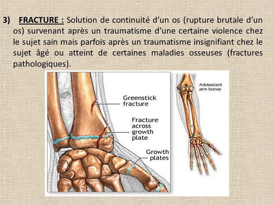 3) FRACTURE : Solution de continuité dun os (rupture brutale dun os) survenant après un traumatisme dune certaine violence chez le sujet sain mais par