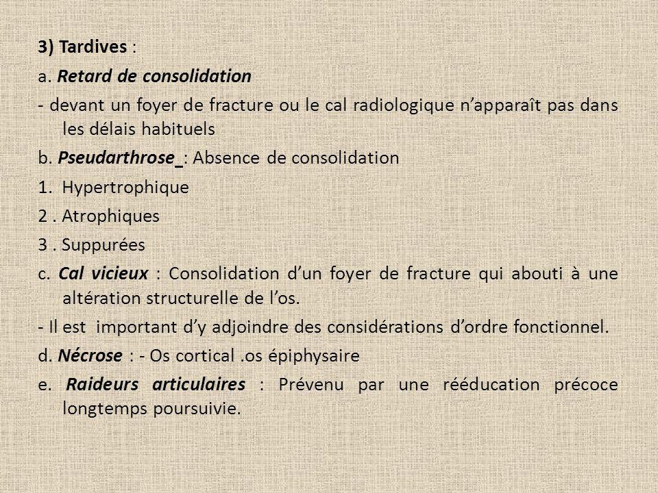 3) Tardives : a. Retard de consolidation - devant un foyer de fracture ou le cal radiologique napparaît pas dans les délais habituels b. Pseudarthrose