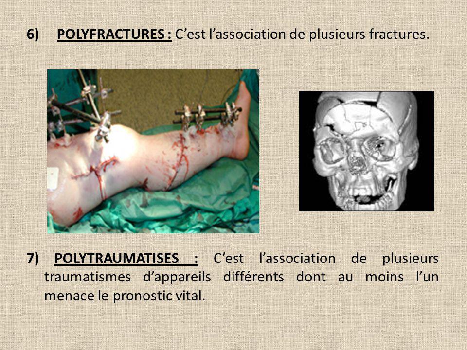 6) POLYFRACTURES : Cest lassociation de plusieurs fractures. 7) POLYTRAUMATISES : Cest lassociation de plusieurs traumatismes dappareils différents do
