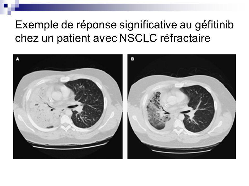 Exemple de réponse significative au géfitinib chez un patient avec NSCLC réfractaire