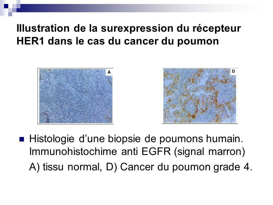 Illustration de la surexpression du récepteur HER1 dans le cas du cancer du poumon Histologie dune biopsie de poumons humain.
