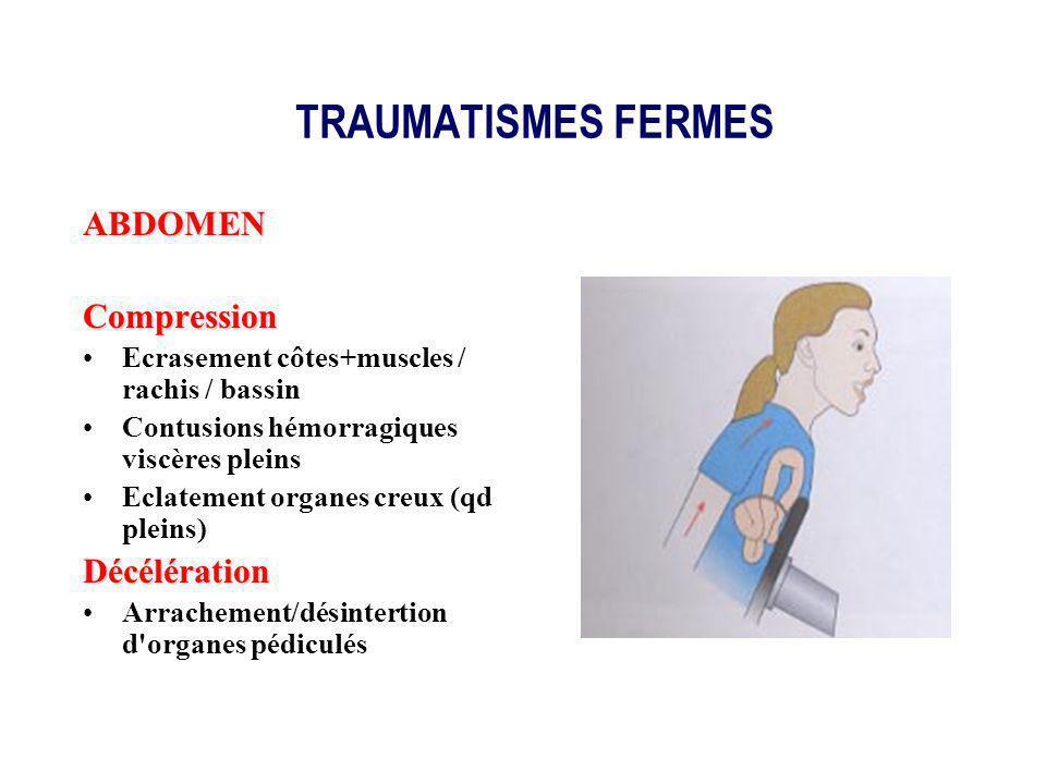 TRAUMATISMES FERMES ABDOMENCompression Ecrasement côtes+muscles / rachis / bassin Contusions hémorragiques viscères pleins Eclatement organes creux (q