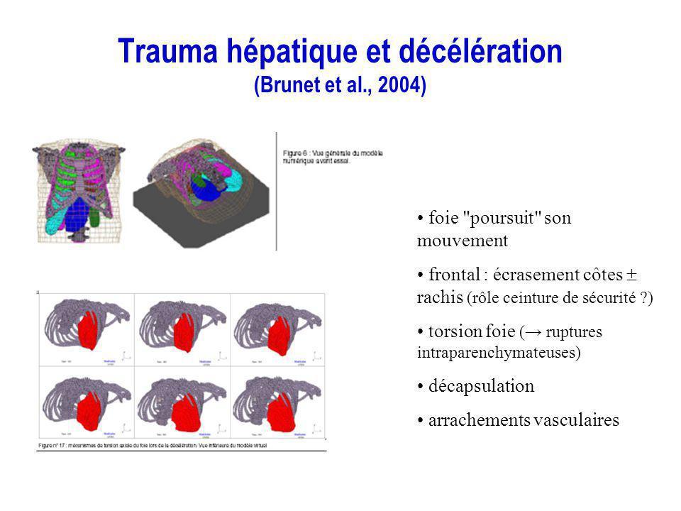 Trauma hépatique et décélération (Brunet et al., 2004) foie