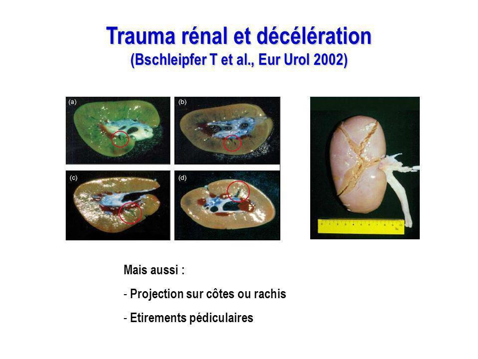Trauma rénal et décélération (Bschleipfer T et al., Eur Urol 2002) Mais aussi : - Projection sur côtes ou rachis - Etirements pédiculaires