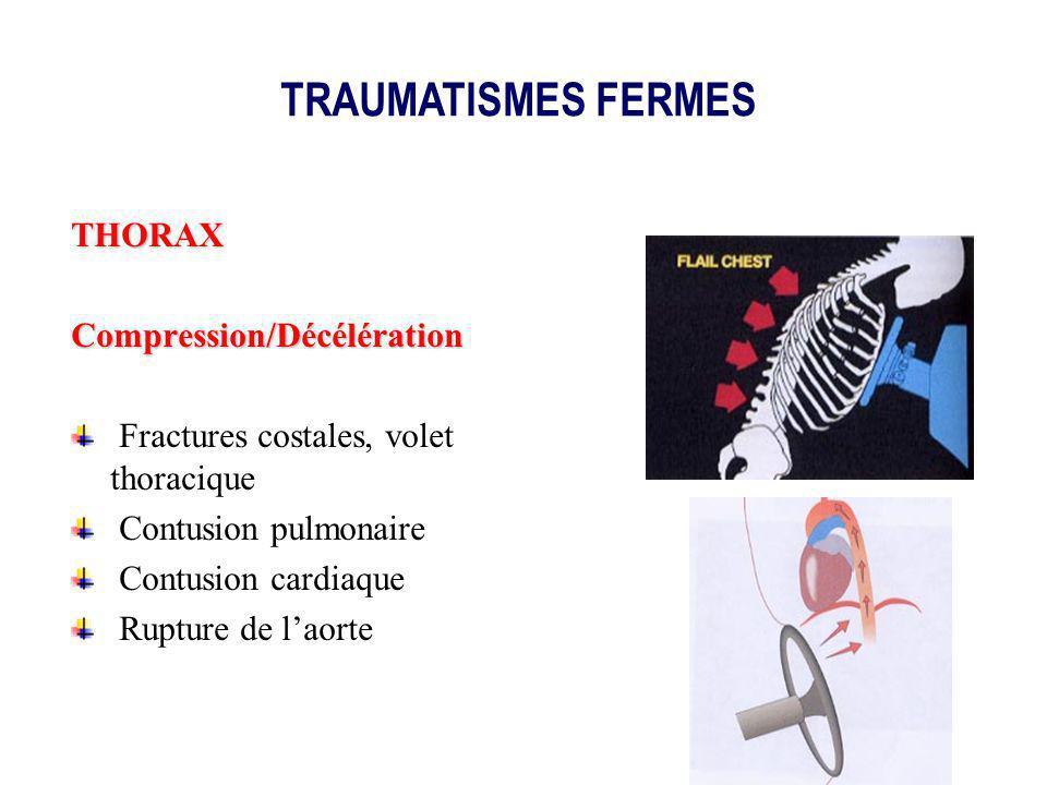 THORAXCompression/Décélération Fractures costales, volet thoracique Contusion pulmonaire Contusion cardiaque Rupture de laorte TRAUMATISMES FERMES