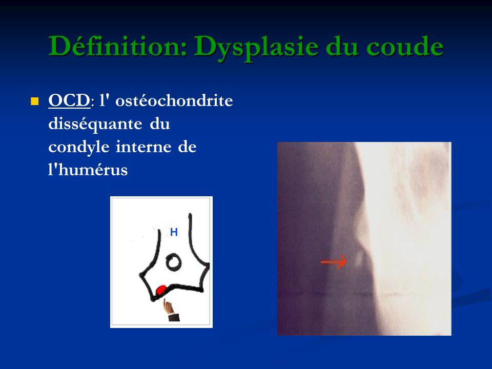 Définition: Dysplasie du coude : OCD: l' ostéochondrite disséquante du condyle interne de l'humérus