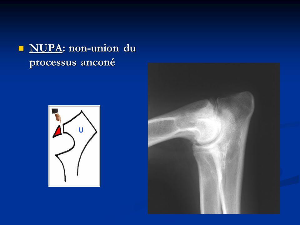 : fragmentation du processus coronoïde interne de l ulna FPCI: fragmentation du processus coronoïde interne de l ulna
