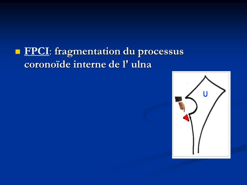 : fragmentation du processus coronoïde interne de l' ulna FPCI: fragmentation du processus coronoïde interne de l' ulna
