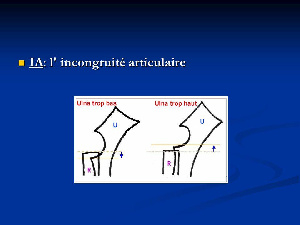 IA: l' incongruité articulaire IA: l' incongruité articulaire