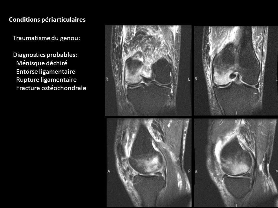 Traumatisme du genou: Diagnostics probables: Ménisque déchiré Entorse ligamentaire Rupture ligamentaire Fracture ostéochondrale Conditions périarticul