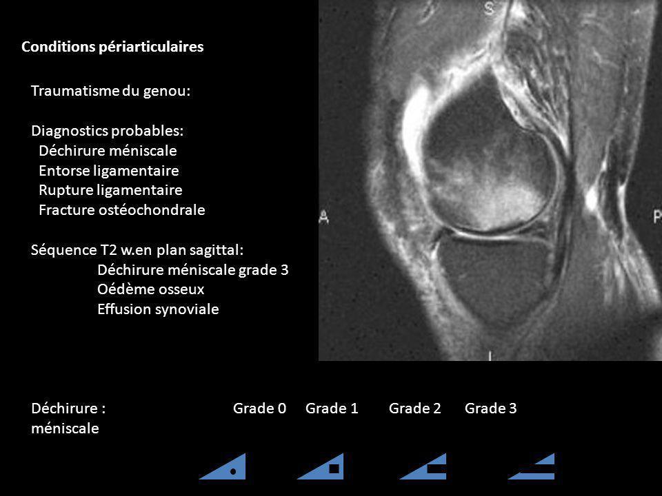 Traumatisme du genou: Diagnostics probables: Déchirure méniscale Entorse ligamentaire Rupture ligamentaire Fracture ostéochondrale Séquence T2 w.en pl