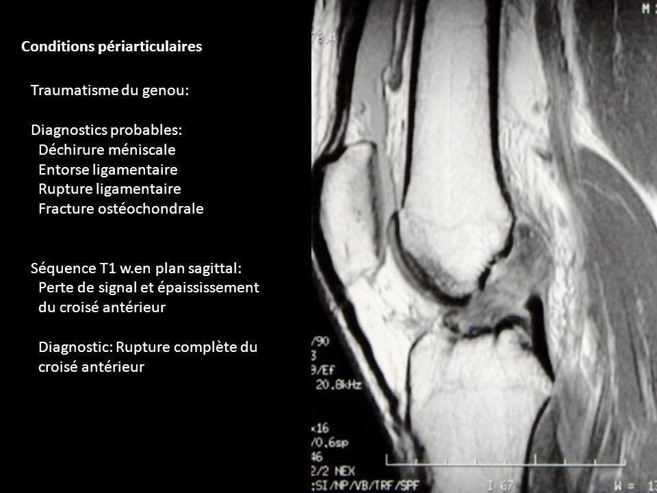 Traumatisme du genou: Diagnostics probables: Déchirure méniscale Entorse ligamentaire Rupture ligamentaire Fracture ostéochondrale Séquence T1 w.en pl