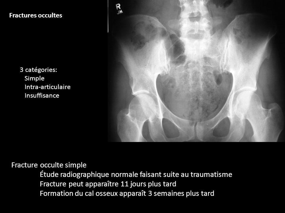 Fracture occulte simple Étude radiographique normale faisant suite au traumatisme Fracture peut apparaître 11 jours plus tard Formation du cal osseux