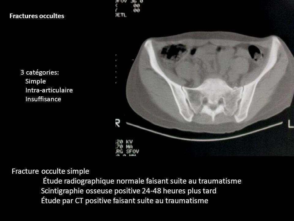 Fracture occulte simple Étude radiographique normale faisant suite au traumatisme Scintigraphie osseuse positive 24-48 heures plus tard Étude par CT p