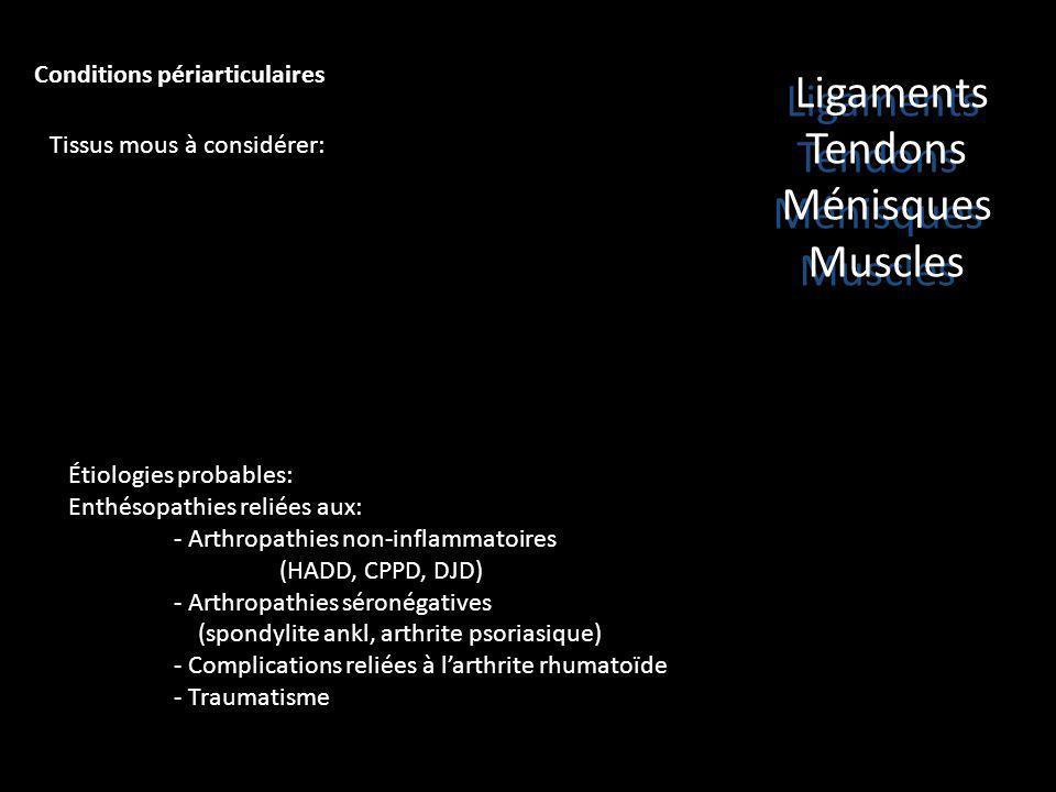 Conditions périarticulaires Tissus mous à considérer: Étiologies probables: Enthésopathies reliées aux: - Arthropathies non-inflammatoires (HADD, CPPD