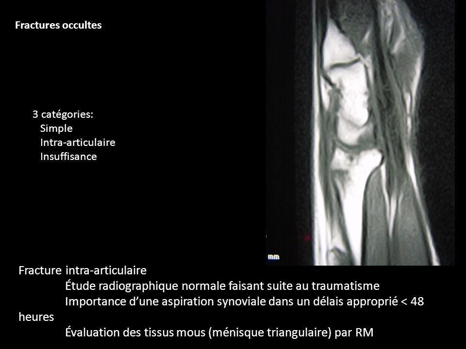 Fracture intra-articulaire Étude radiographique normale faisant suite au traumatisme Importance dune aspiration synoviale dans un délais approprié < 4