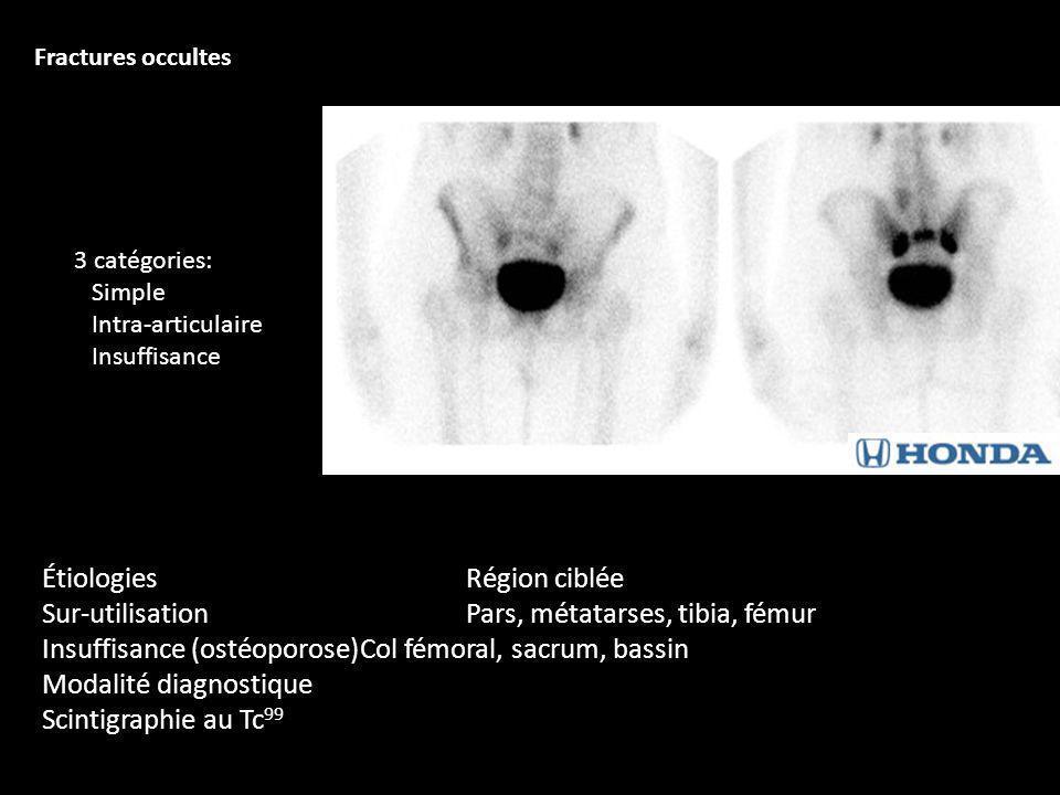 ÉtiologiesRégion ciblée Sur-utilisationPars, métatarses, tibia, fémur Insuffisance (ostéoporose)Col fémoral, sacrum, bassin Modalité diagnostique Scin