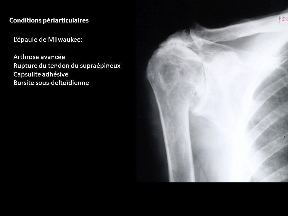 Lépaule de Milwaukee: Arthrose avancée Rupture du tendon du supraépineux Capsulite adhésive Bursite sous-deltoïdienne Conditions périarticulaires