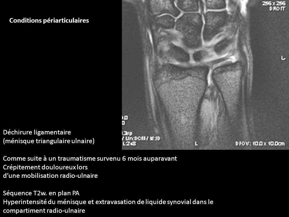 Déchirure ligamentaire (ménisque triangulaire ulnaire) Comme suite à un traumatisme survenu 6 mois auparavant Crépitement douloureux lors dune mobilis