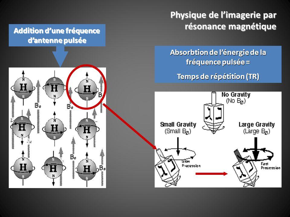 Addition dune fréquence dantenne pulsée Absorbtion de lénergie de la fréquence pulsée = Temps de répétition (TR) Physique de limagerie par résonance magnétique
