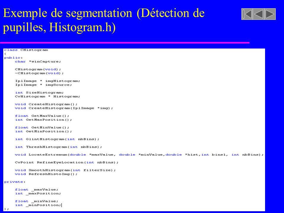 imageasegmenter.rast Exemple de segmentation (Détection de pupilles)