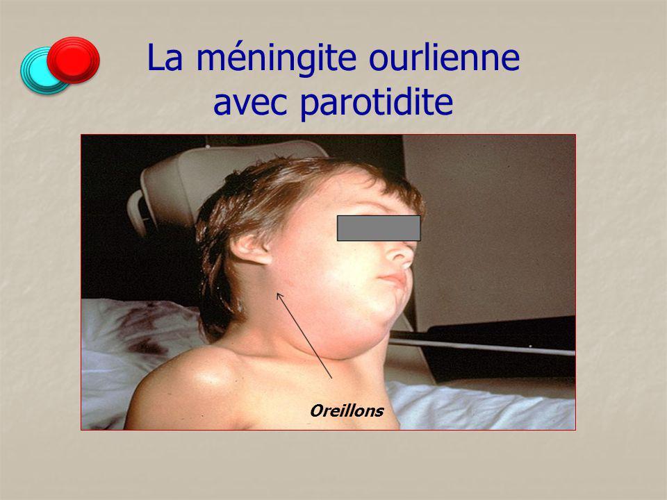 La méningite ourlienne avec parotidite Oreillons