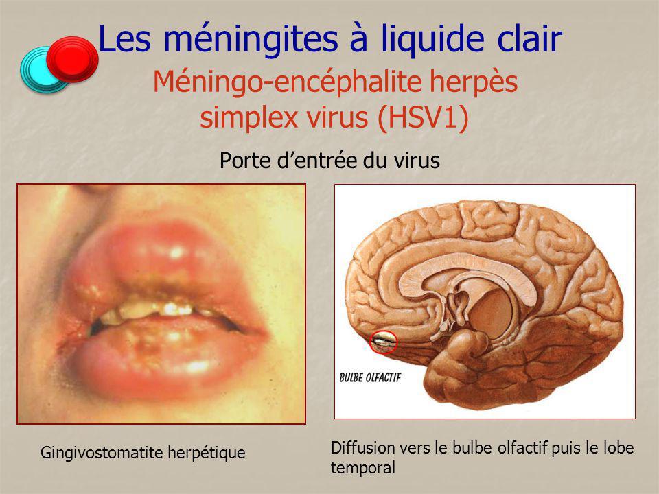 Les méningites à liquide clair Méningo-encéphalite herpès simplex virus (HSV1) Porte dentrée du virus Gingivostomatite herpétique Diffusion vers le bu