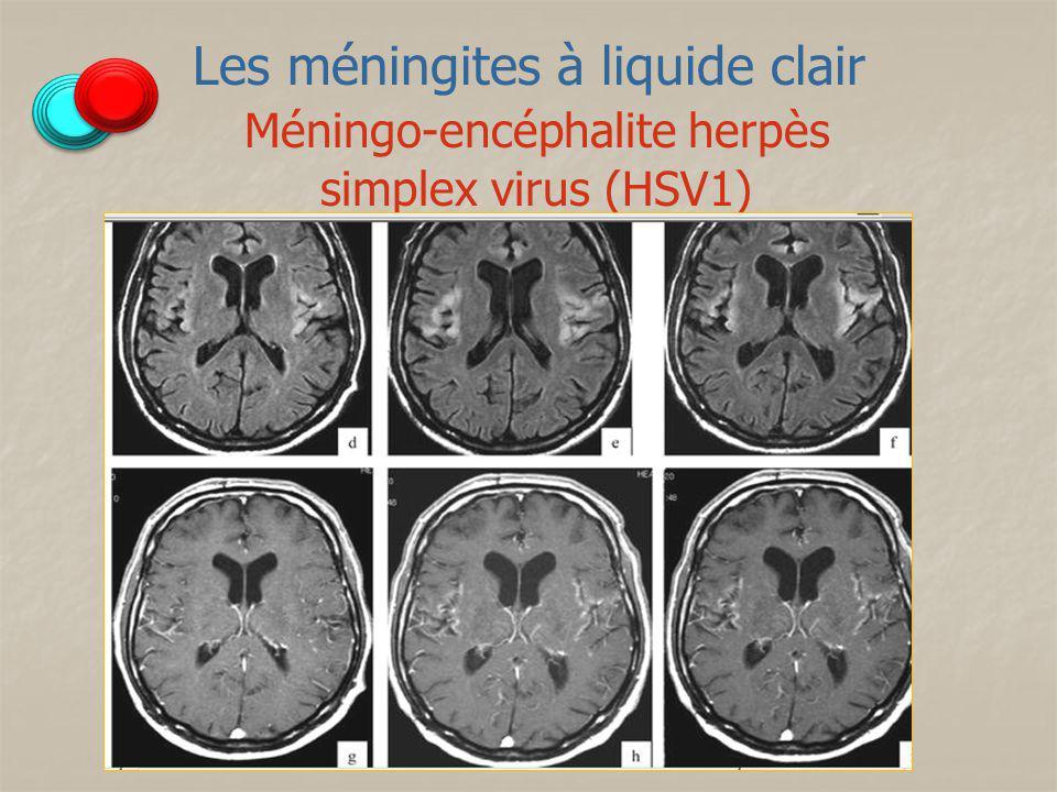 Méningo-encéphalite herpès simplex virus (HSV1)