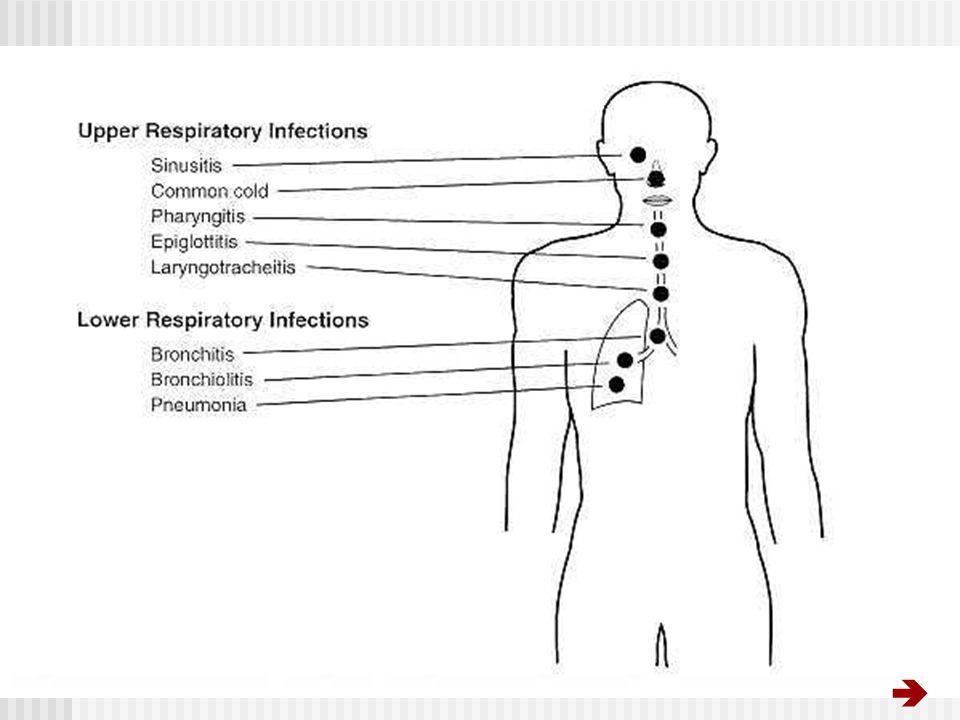 INTRODUCTION Motif fréquent des consultations Incidence annuelle des IRA-BC: 51/1000 à 84/1000 Incidence annuelle des PAC: 1.6/1000 à 19/1000 Morbidité importante: 6 % des C/S de médecine générale 4 % des hospitalisations Mortalité: 1ère cause de mortalité chez lenfant (PED)