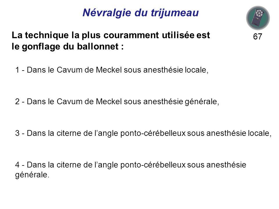 La technique la plus couramment utilisée est le gonflage du ballonnet : 67 1 - Dans le Cavum de Meckel sous anesthésie locale, 2 - Dans le Cavum de Meckel sous anesthésie générale, 3 - Dans la citerne de langle ponto-cérébelleux sous anesthésie locale, 4 - Dans la citerne de langle ponto-cérébelleux sous anesthésie générale.