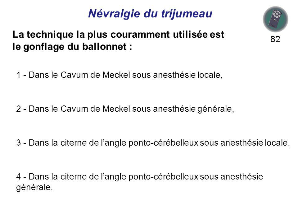 La technique la plus couramment utilisée est le gonflage du ballonnet : 82 1 - Dans le Cavum de Meckel sous anesthésie locale, 2 - Dans le Cavum de Meckel sous anesthésie générale, 3 - Dans la citerne de langle ponto-cérébelleux sous anesthésie locale, 4 - Dans la citerne de langle ponto-cérébelleux sous anesthésie générale.