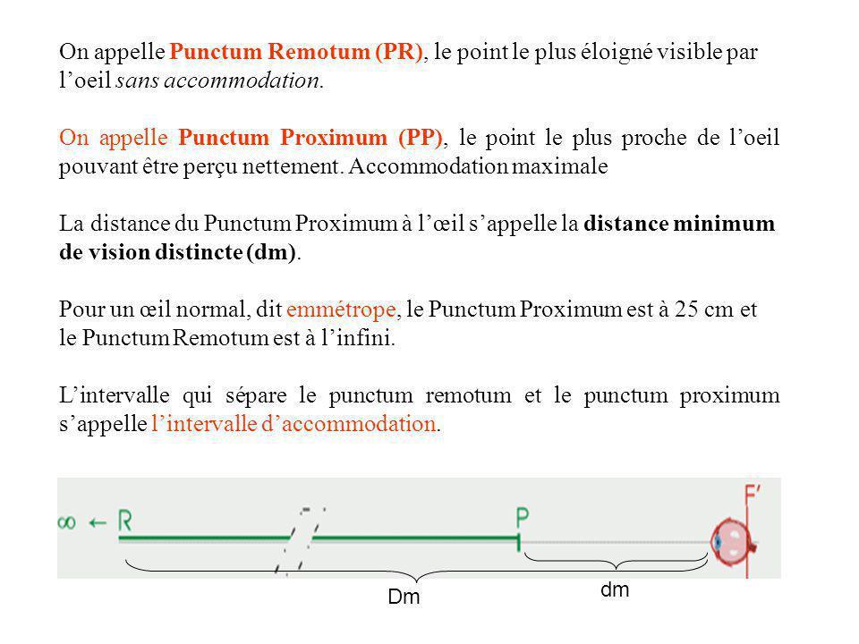 oeil PP PR dmdm lintervalle daccommodation DmDm Œil normal (emmétrope) D m est linfini d m = 25 cm Œil myope D m distance finie d m < 25 cm 3) défauts de lŒIL