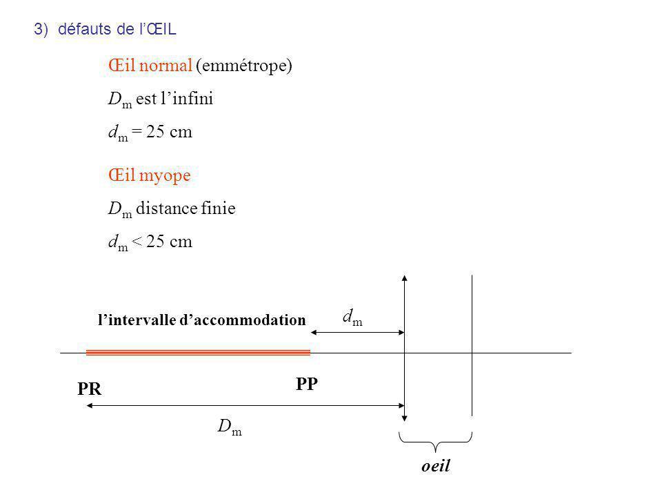 oeil PP PR dmdm lintervalle daccommodation DmDm Œil normal (emmétrope) D m est linfini d m = 25 cm Œil myope D m distance finie d m < 25 cm 3) défauts