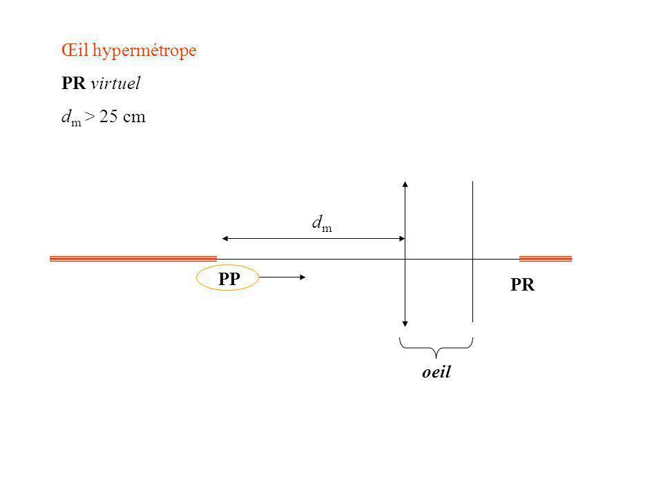 4) Correction des défauts : Variations de V : on pose p=OA et p=OA vision éloignée (punctum remotum R) : p ; p sur la rétine soit p=16,6mm V = 60 (f=16,6mm) vision rapprochée (punctum proximum P) : p=-25cm ; p sur la rétine soit p=16,6mm V = 64 (f=15,6mm) amplitude dioptrique : V= 4 Œil normal