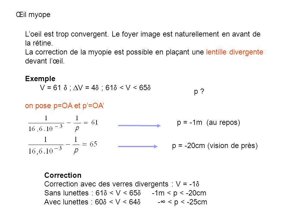 Œil myope p = -20cm (vision de près) p = -1m (au repos) Loeil est trop convergent. Le foyer image est naturellement en avant de la rétine. La correcti