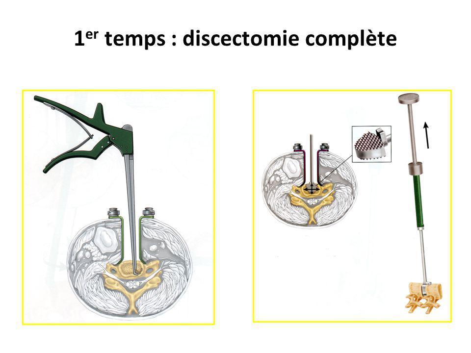 1 er temps : discectomie complète