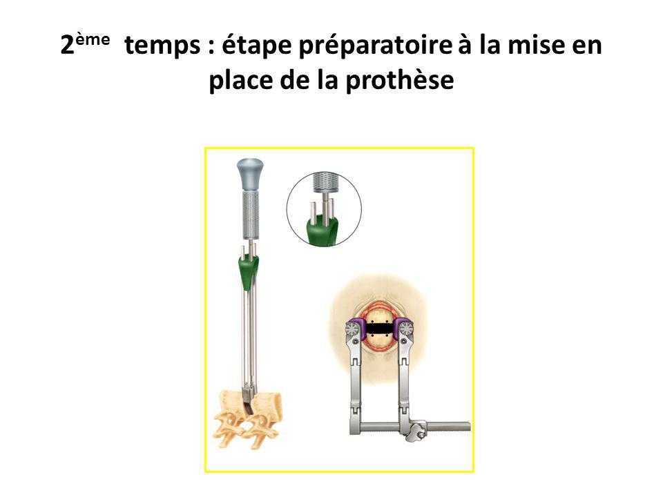 2 ème temps : étape préparatoire à la mise en place de la prothèse