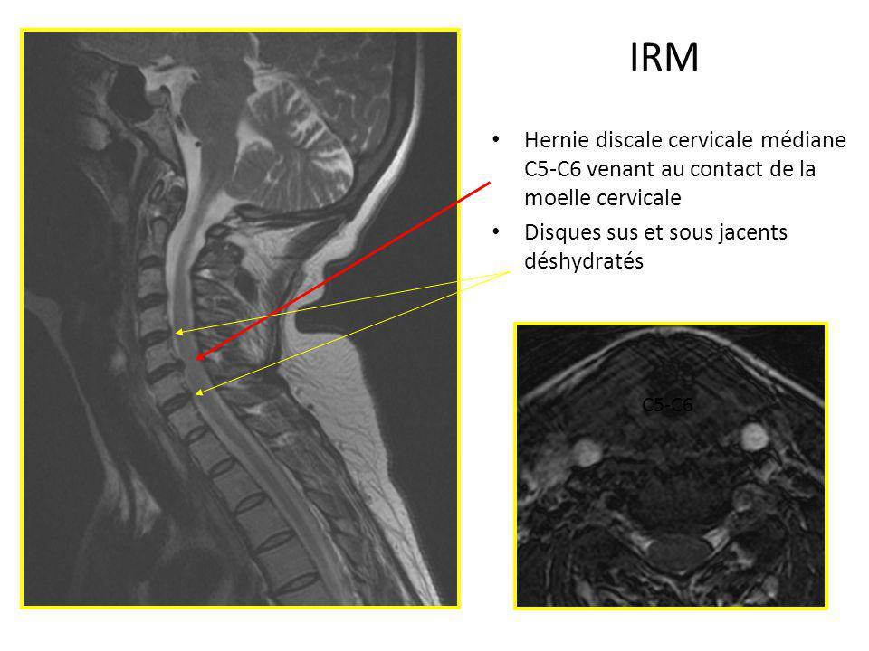 IRM Hernie discale cervicale médiane C5-C6 venant au contact de la moelle cervicale Disques sus et sous jacents déshydratés C5-C6