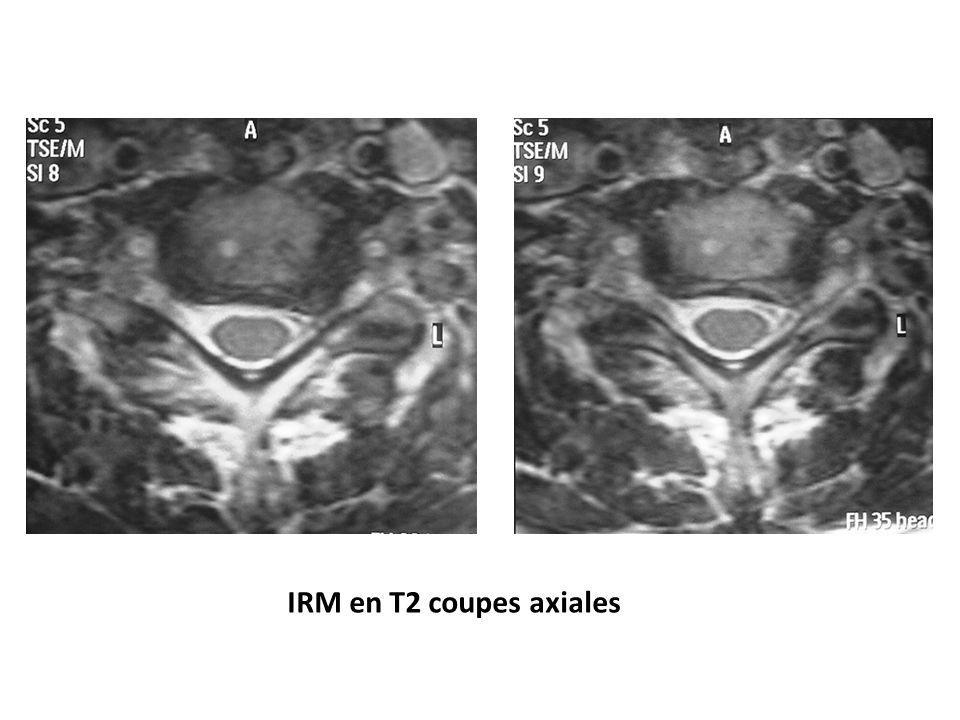 Cas clinique 2 Propositions de prise en charge – HD médiane, paramédiane – arthroplastie C5-C6 – indications: sujet jeune, pas de déformation vertébrale