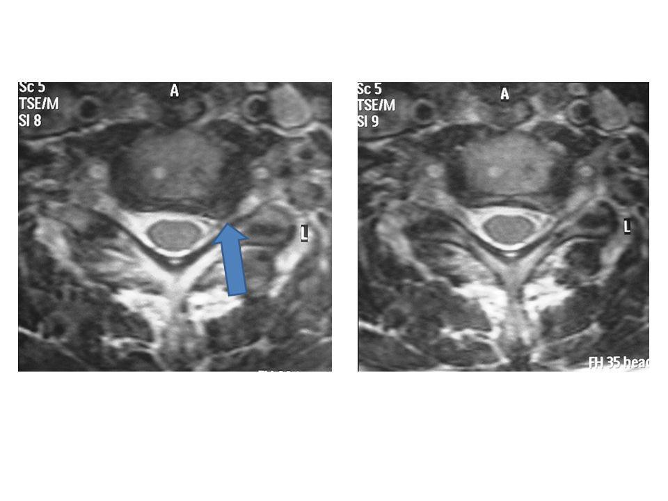 Technique opératoire Abord cervical antérieur (identique à la cure chirurgicale dune hernie discale cervicale) Peu invasif
