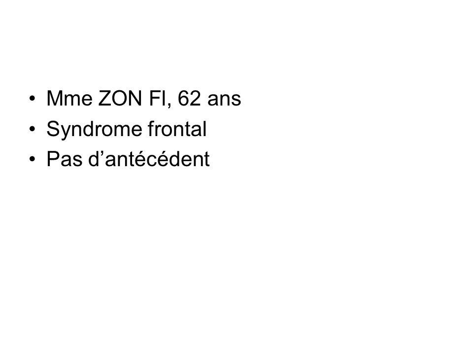 Mme ZON Fl, 62 ans Syndrome frontal Pas dantécédent